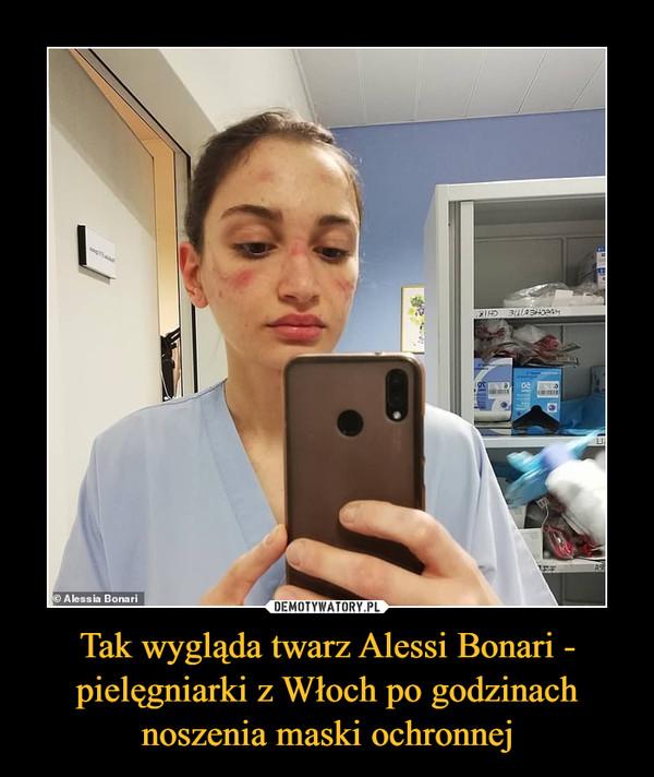 Tak wygląda twarz Alessi Bonari - pielęgniarki z Włoch po godzinach noszenia maski ochronnej –
