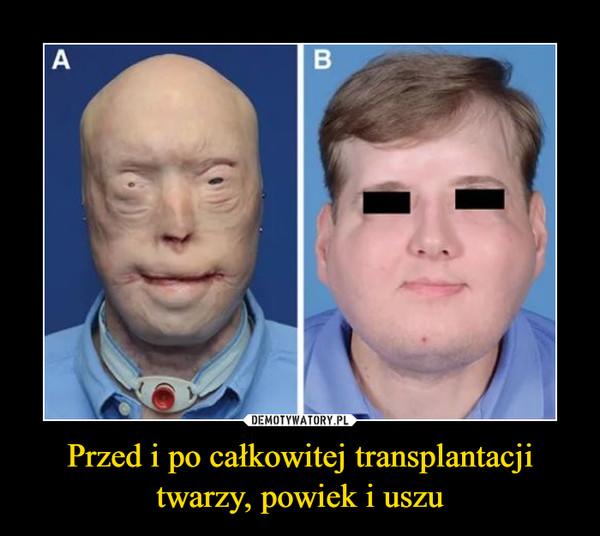 Przed i po całkowitej transplantacji twarzy, powiek i uszu –