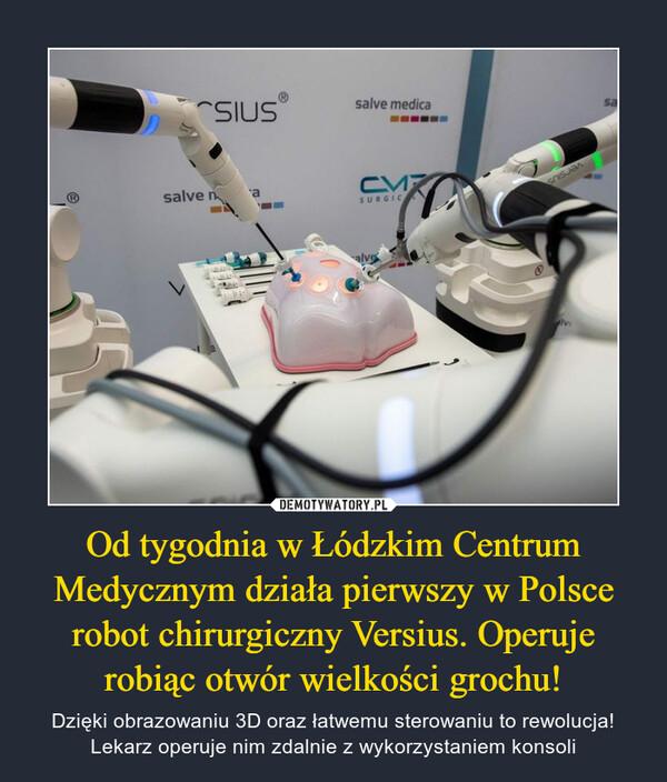 Od tygodnia w Łódzkim Centrum Medycznym działa pierwszy w Polsce robot chirurgiczny Versius. Operuje robiąc otwór wielkości grochu! – Dzięki obrazowaniu 3D oraz łatwemu sterowaniu to rewolucja! Lekarz operuje nim zdalnie z wykorzystaniem konsoli